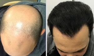 Iran hair transplant